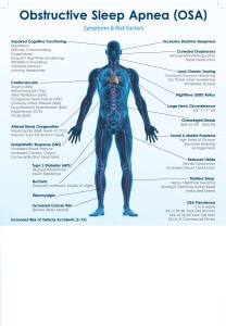 sleep-apnea-symptoms